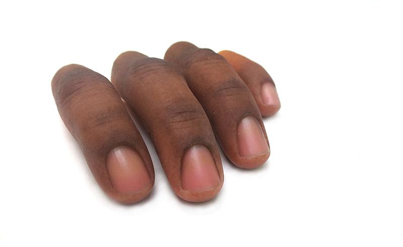 dedos-epitesis-silicona-ortosur-protesis