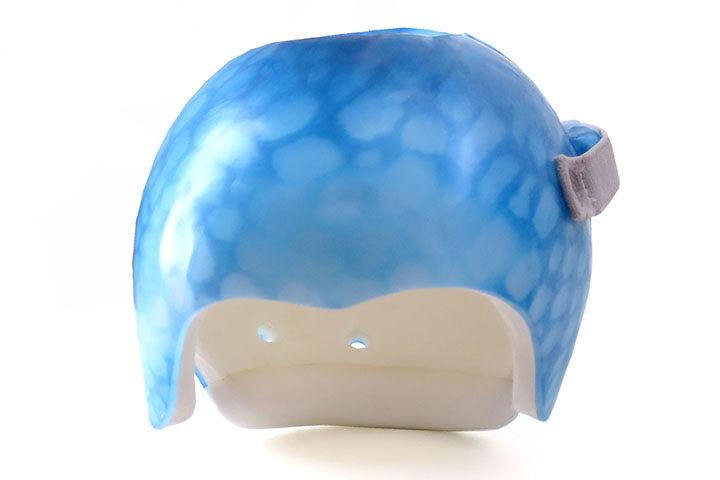 casco-plagiocefalia-azul-baja