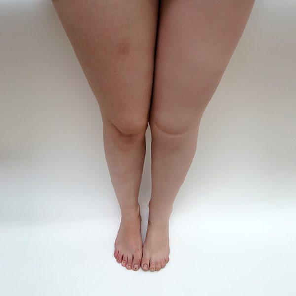 cosmetica-pierna-silicona-ortosur