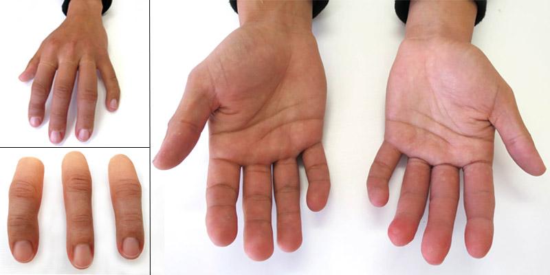 dedos-ortosur-epitesis-silicona-amputacion