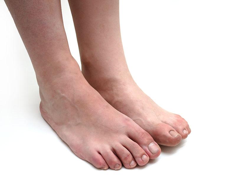 estetica-femoral-protesis-pierna-con-pie-estetico
