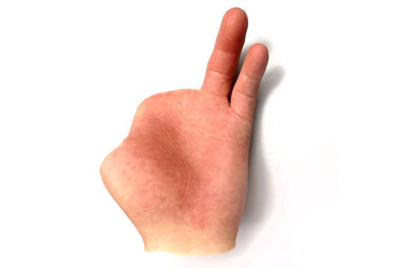 estetica-parcial-mano-ortosur