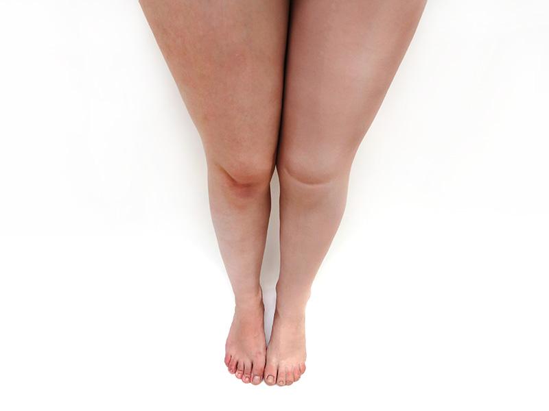 estetica-protesis-femoral-silicona-pierna-detalles-completa-ortosur