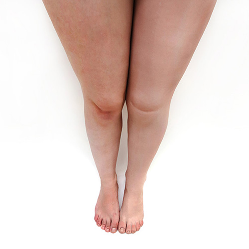 estetica-protesis-inferior-categoria