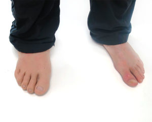 pie-silicona-ortosur