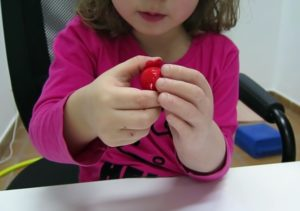 protesis agenesia silicona ortopedia ortosur infantil