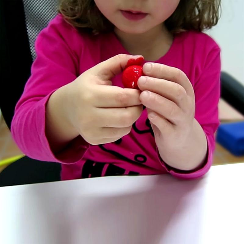 protesis-infantiles-agenesia-ortosur