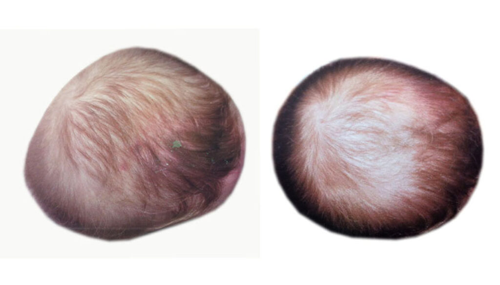 resultados-casco-plagiocefalia